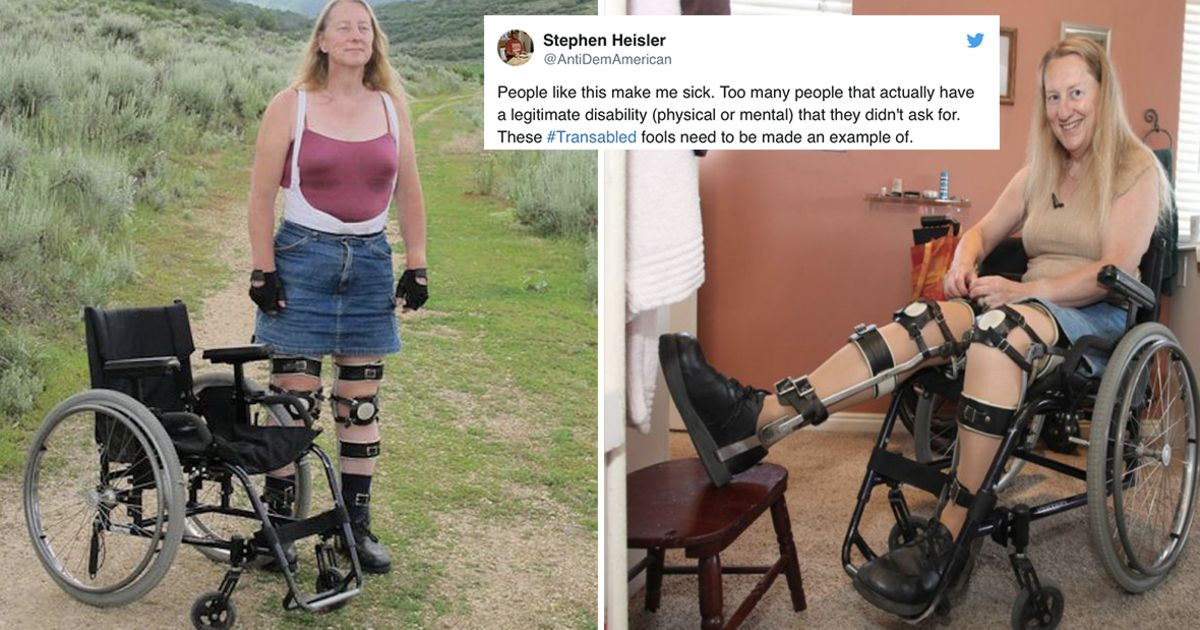 Perfectly Healthy Woman Becomes Disabled On Purpose, Calling It 'Transabled'