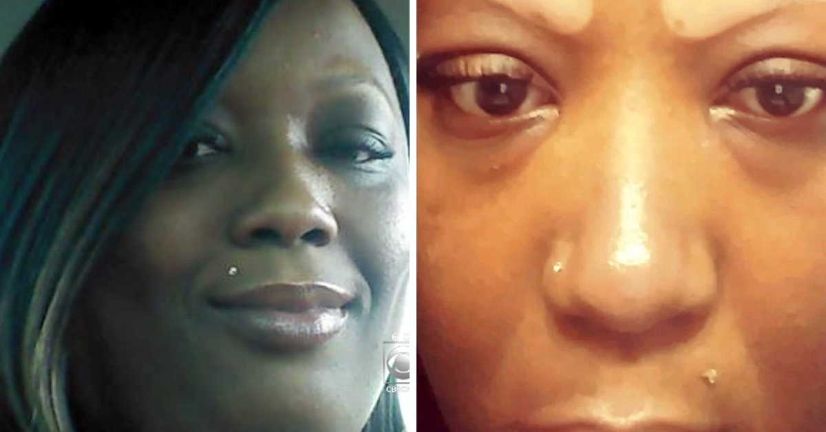 This Woman Was Left Permanently Scarred After A Salon Burned Off Her