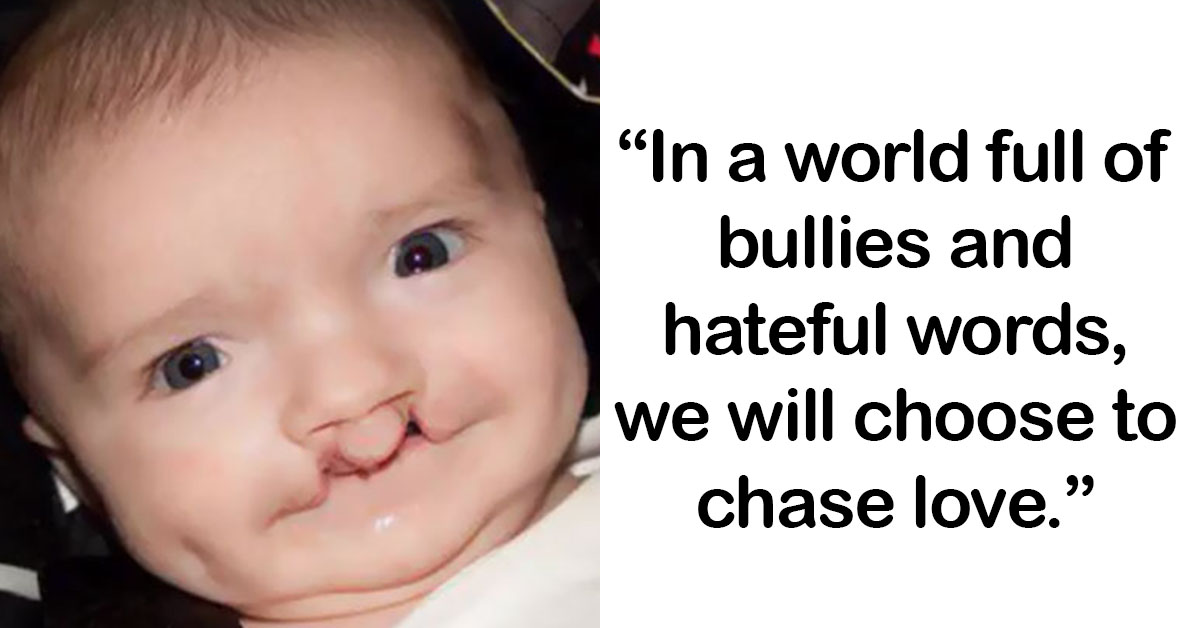 This Bullied 7-Year-Old Miraculously Adopts A Cat With Same Eye Condition And Cleft Lip