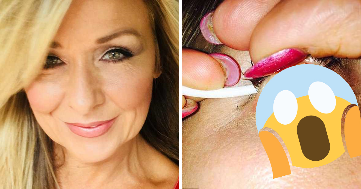Horrifying Photos Reveal What Happens When You Don't Remove Your Mascara Properly